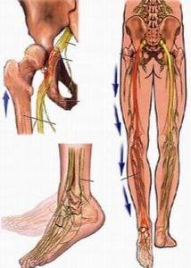 Bệnh đau thần kinh tọa là gì? Triệu chứng và cách chữa đau thần kinh tọa