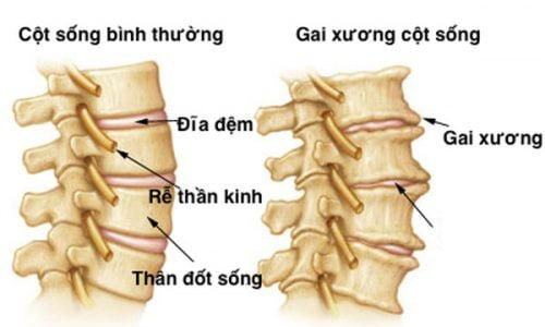 gai-xuong-dot-song-lung