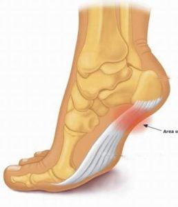 Cách điều trị gai xương gót chân