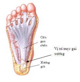 Nguyên nhân triệu chứng gây gai xương gót chân
