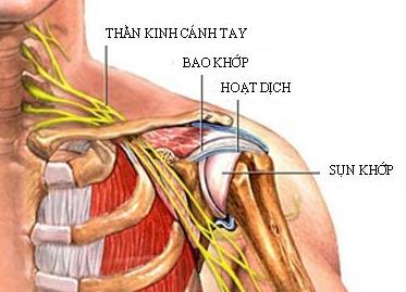 Biện pháp hỗ trợ điều trị đau khớp vai hiệu quả
