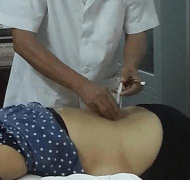 Phương pháp thủy châm chữa bệnh xương khớp hiệu quả cao
