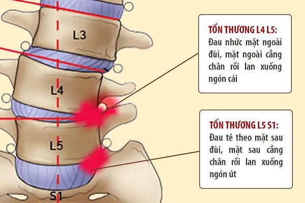 Thoát vị đĩa đệm cột sống thắt lưng L4 L5 và cách điều trị : Xương Khớp  Việt – 99% người bệnh áp dụng đã khỏi